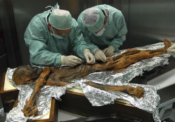 活在5300年前的冰人奧茲(Iceman Oetzi)的遺體,最後一餐吃得又豐富,但特別的是脂肪吃得超級多。(美聯社)