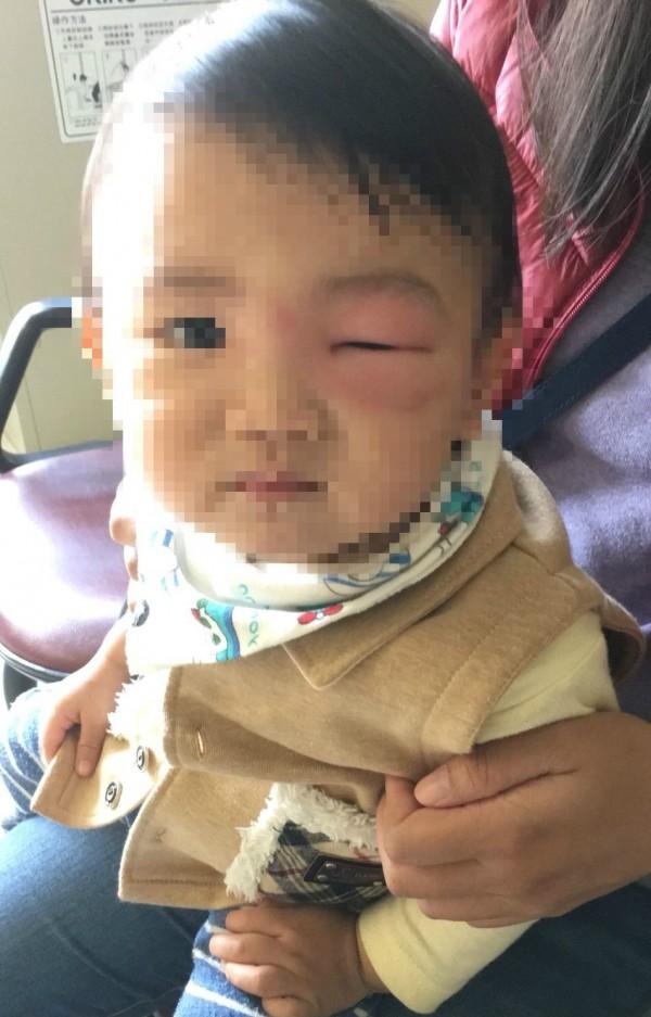 2歲簡姓男童左眼旁被蚊子叮後,昨天起床竟腫脹到眼睛睜不開,宛如「麵龜」,讓家人都嚇壞了。(記者陳建志翻攝)