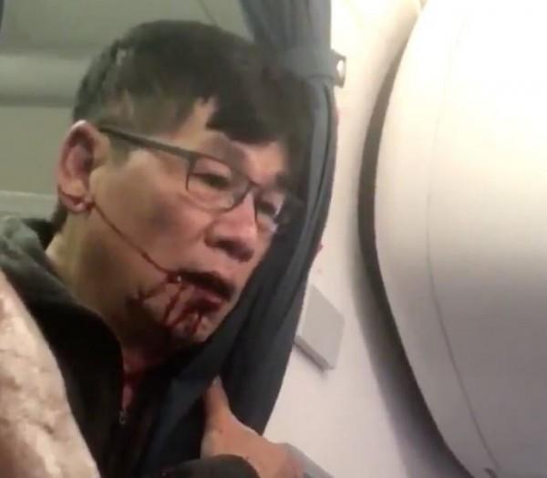 遭美國聯合航空強行拖下飛機的亞裔男子。(圖擷自推特)