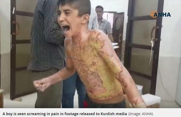 敘利亞邊境城市艾因角(Ras al-Ayn)附近的塔爾塔姆爾鎮(Tal Tamr)一家醫院13日流出一名庫爾德男童上半身遭嚴重燒傷、入院後仍不停哭泣求饒的影片。(圖擷取自鏡報)