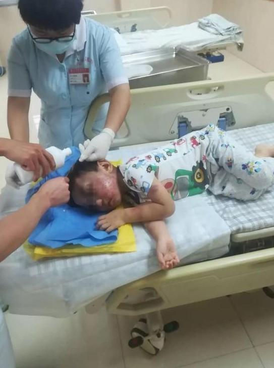 醫生檢查時竟發現,男童四肢、軀幹布滿多處新舊瘀傷,頭部還有一處3公分的傷口已經化膿,就連生殖器官也被打腫,所幸傷勢未危及生命。(圖擷取自網路)