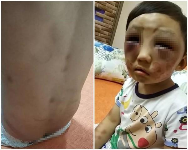 中國廣東東莞市近日傳出,一名4歲男童遭狠心母親長期施虐,近日趁母親外出時逃家,才順利獲救,被強制治送醫治療。(圖擷取自網路)