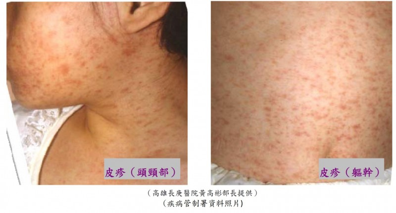 桃園市今天確診1名麻疹病例,是龜山區30餘歲男性。(桃園市衛生局提供)