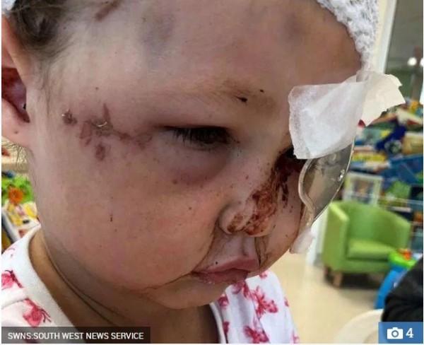 英國一名4歲女童堤莉(Tillie)日前在友人社區家玩耍,突然遭一頭惡犬猛烈攻擊,不僅造成頭骨碎裂、臉上多處擦傷其中一眼也近乎失明。(圖擷取自太陽報)