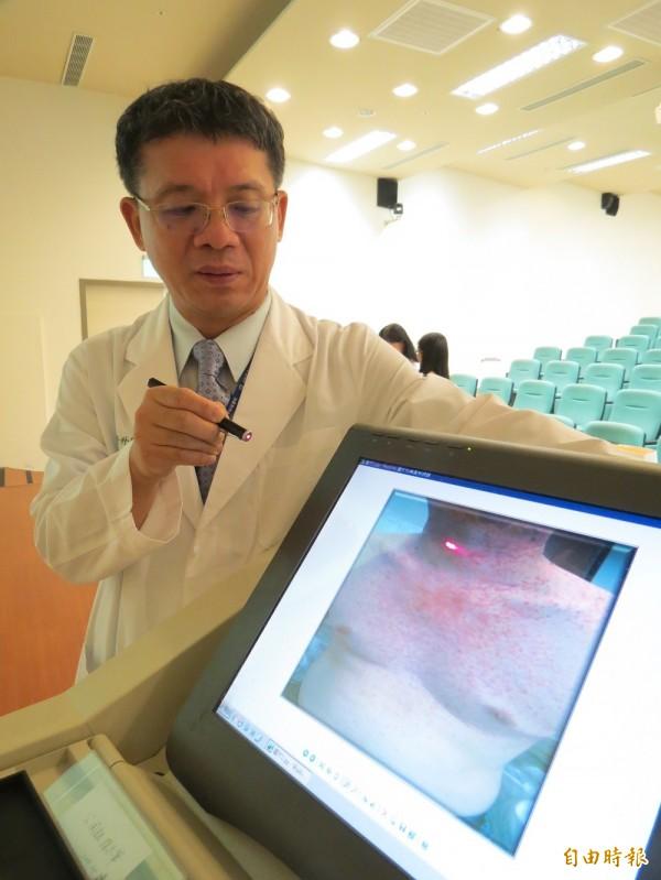中西醫攜手,改善肺癌標靶藥物毒副作用。(記者蘇孟娟攝)