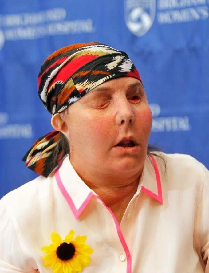 2013年接受臉部移植手術後,醫師在上個(8)月發現塔里頓有小部分面部組織已經壞死,如果無法及時修復,可能需要換一張「新臉」。(路透)