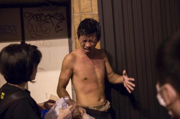 有示威者遭胡椒噴霧攻擊,用清水清洗。(法新社)