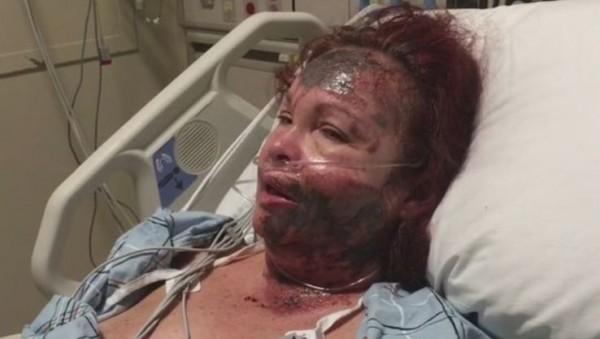 鄧恩謊稱自己被潑酸被警方識破,身上傷疤為自殘所致。(圖擷取自CBS)