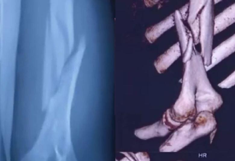 中國有一名男大生在比腕力的過程中,不慎用力過猛,手臂當場「斷成兩截」,相當駭人。(圖片擷取自微博)