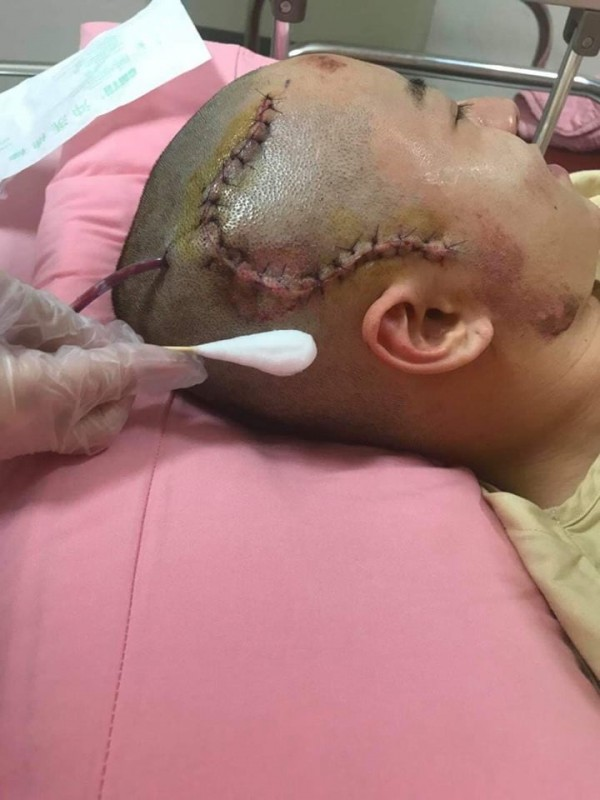 鄧女男友被撞到顱內出血、頭骨骨折,到現在還會常常頭暈。(圖擷取自爆料公社)