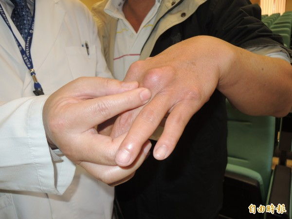 美國杜克大學最新研究指出,痛風會引發身體發炎,進而產生心血管疾病,因此,痛風病患得到心臟病或中風的機率會比常人多出15%。(資料照)