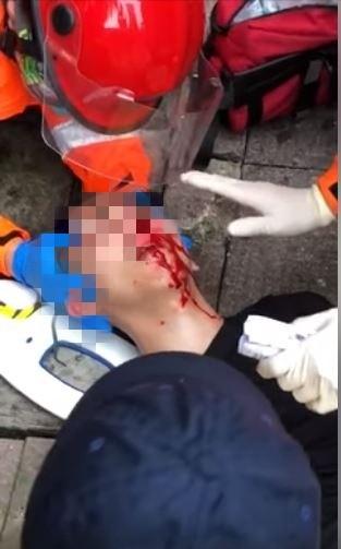 港民為「反送中」包圍立法會,傳出嚴重警民流血衝突。一名青年吐血急救影片流出,網友們見了相當不忍,紛紛為香港加油。(擷取自「Gil Lee」臉書)