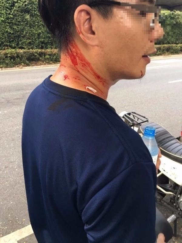 台大學生遭甩棍打傷,血流如注。(翻攝自臉書)