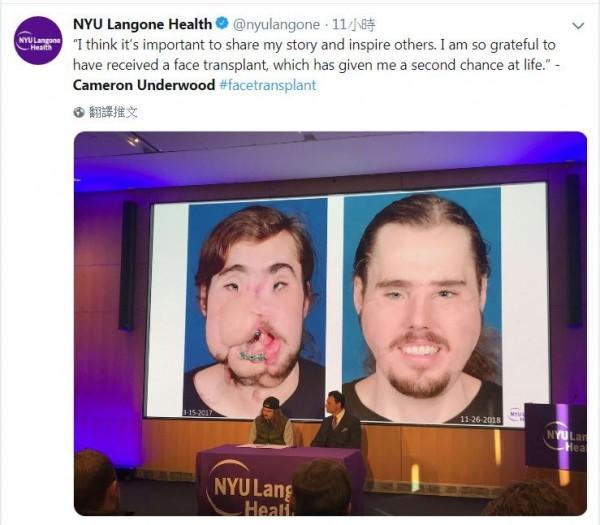 2016年時,美國男子安德伍德(Cameron Underwood)因飽受憂鬱症所苦,決定舉槍自轟,雖然成功保住一命卻面目全非,一年半後,在醫療團隊的努力下,他終於重拾帥氣容貌。(圖擷取自推特NYU Langone Health)