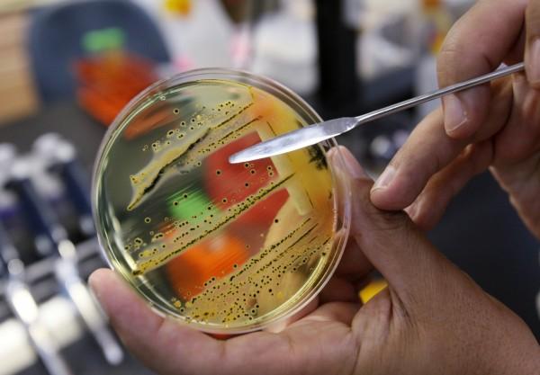 世界衛生組織(WHO)27日公布12種對人類健康構成最大威脅的細菌:這些細菌已對大量抗生素產生耐藥性。(美聯社)