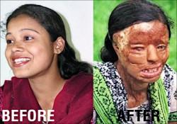 籌整形費成電視紅人 毀容印度女結婚