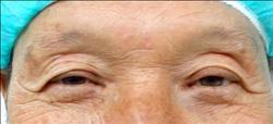 老翁眼瞼下垂 術後揮別「加菲貓眼」