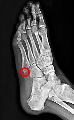 腳踝扭傷治不好 當心骨折了