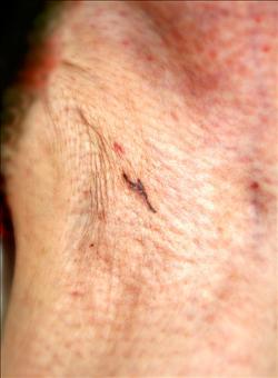 腋下不明黑線 恐患皮膚癌
