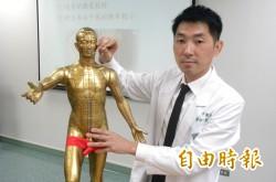 柳奇中醫針灸治療 降低腦中風再發生機率