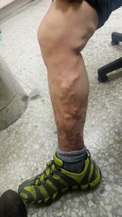 靜脈曲張爬上腿 雷射微創手術傷口小
