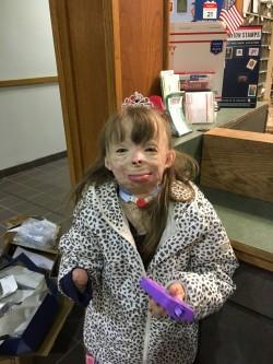 愛心串連全球 被火紋身的女童收到19.5萬張耶誕卡