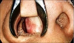 長期「鼻塞」不理會 恐罹睡眠呼吸中止症