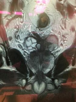 機械手臂除攝護腺癌 7旬老翁3天就出院