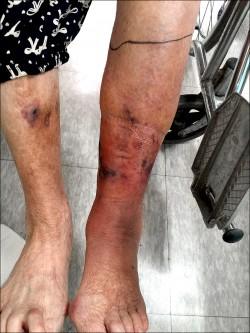 被竹子刺傷 婦人險賠一條腿