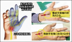 治療腕隧道症候群 只靠推拿是不夠的