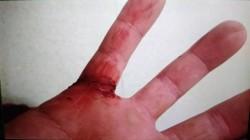 通緝犯大街遭壓制 拒捕揮刀警員濺血