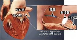 「左心耳封堵術」 可防心房顫動腦中風