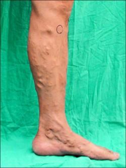 血管內雷射合併注射治療 靜脈曲張免住院