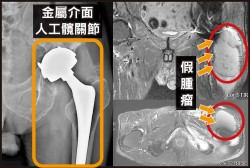 髖關節長假腫瘤 竟是金屬介面關節併發症