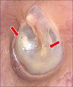 左耳悶悶的 竟是耳膜黃色瘤