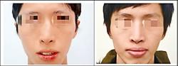 功能式鼻整形 歪鼻、鼻塞一次拜拜