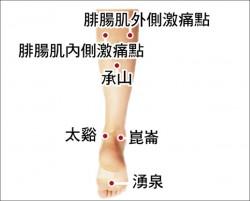 足底筋膜炎 中醫針灸有效緩解