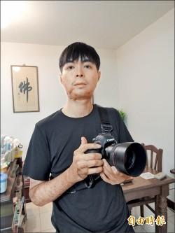 灼傷動14次刀 他用相機復健 看見谷底重生