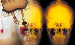 抑制前列腺素 可減少癌症復發/國衛院新研究 利用E2受體拮抗劑 能降低腫瘤對化療抗藥性