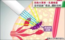 3D微波乳房攝影 無痛無輻射