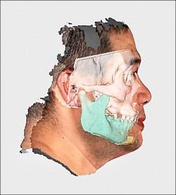 呼吸中止症手術 3D列印技術助好眠