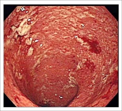 腸道性發炎 易被誤診大腸激躁症