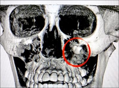 罕見! 智齒長在眼眶下 造袋術 切除囊腫並拔牙