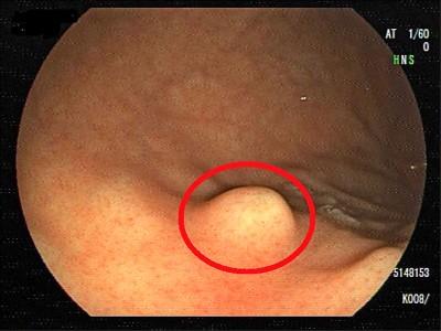 胃黏膜下腫瘤 不一定是胃癌