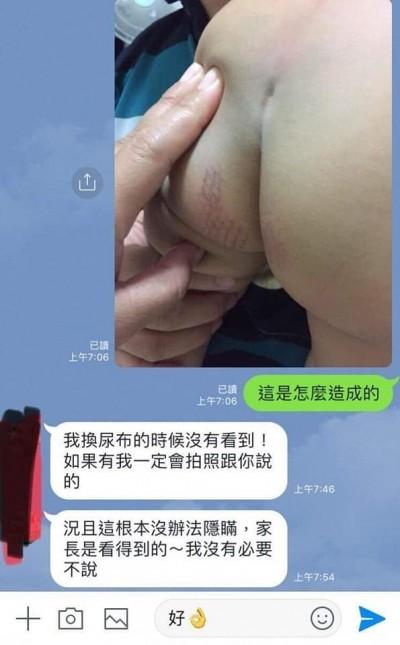 男童屁股、生殖器被燙出網狀傷痕 狠保母被起訴