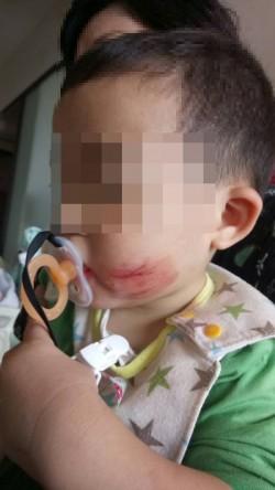 再傳虐童!1歲半男嬰哭鬧 竟遭保母「膠帶封嘴」