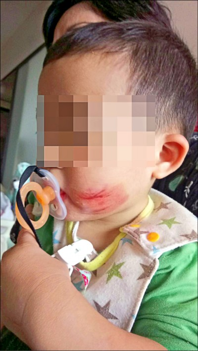 保母虐童 男娃遭膠帶封嘴雙頰受傷