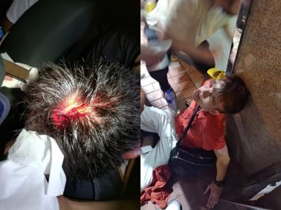 白衫軍見人就打!男子頭部、背部「開花」、孕婦被毆倒地