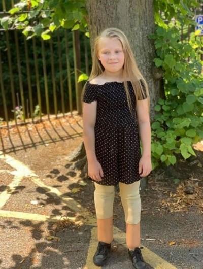 「腦膜炎」引敗血症 11歲女童2腳截肢後積極生活