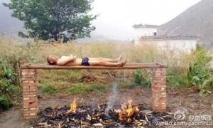 雲南25歲男罹癌沒錢治 火烤身體殺癌細胞